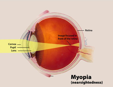 cure nearsightedness Archives - About Eye Floaters