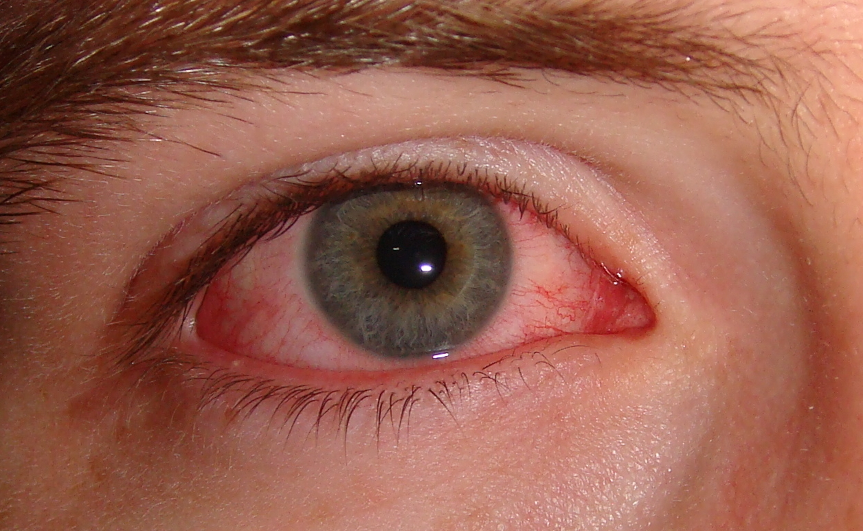 Are eye floaters dangerous?