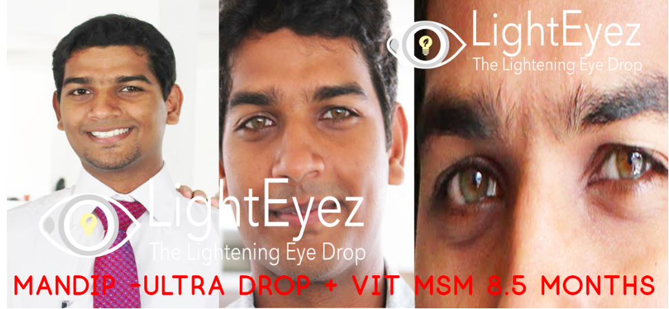 Light Eyez Eye Drops – Eye Drops for Nearly Every Purpose