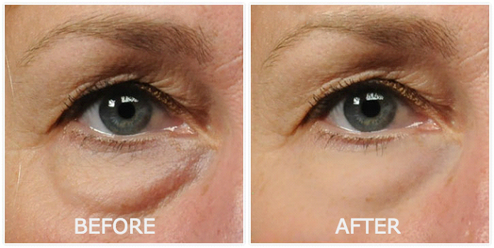 revitol eye cream results, revitol cream