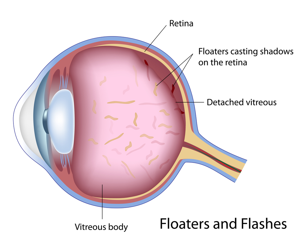 Dissolve Eye Floaters Naturally